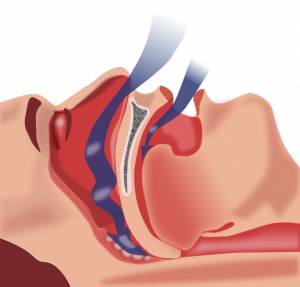 Obstructive sleep apnea (OSA) is caused by obstruction of the upper airway and is characterized by repetitive pauses in breathing during sleep, despite the effort to breathe. It is also usually associated with a reduction in blood oxygen saturation.
