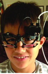 Figure 1b. Another example of a young child wearing the Interacoustics EyeSeeCam goggle for vHIT testing.