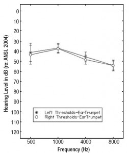 Figure 4. Audiometric thresholds and ±1 standard deviation for Group 2 participants' right and left ears obtained at 500, 1000, 4000, and 8000 Hz from the EarTrumpet smartphone-based hearing test application.
