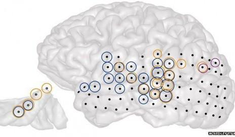 Tinnitus Mapping on Brain
