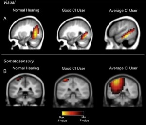 cochlear implants affect brain reorganizations